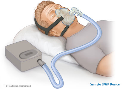 Example-of-CPAP-sleep-apnea-device